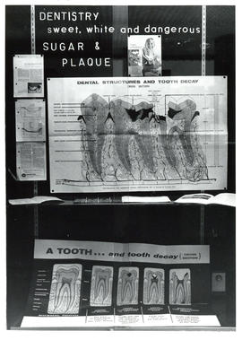 Photograph of Dentistry display case exhibit on Sugar and Plaque